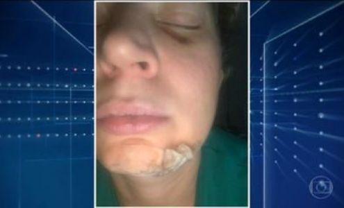 Deputada Joice Hasselmann agredida covardemente diz que pode ter sofrido atentado político em Brasília (Crédito: Reprodução)
