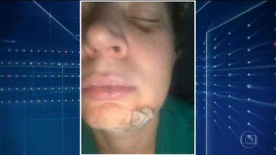 Deputada Joice Hasselmann agredida covardemente diz que pode ter sofrido atentado político em Brasília